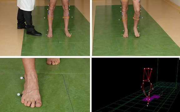 gait-analysis